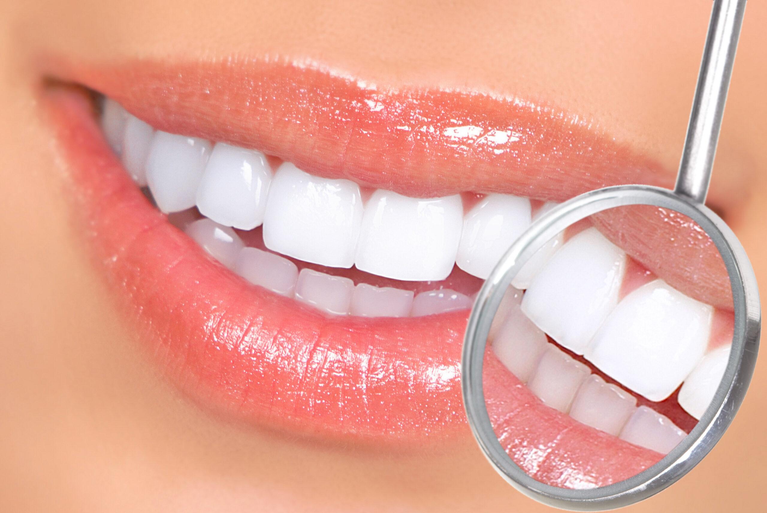 studio-dentistico-estetico-furlan-belleri-gheller-vicenza-odontoiatria
